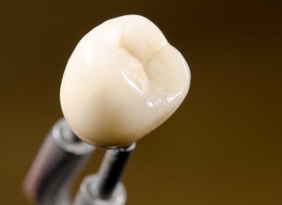 Dental Crowns In Islamabad