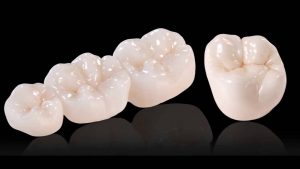 Dental Crowns in islamabad
